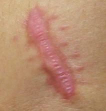keloid-scars