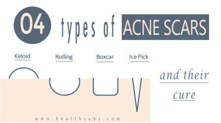 types-of-acne-scars
